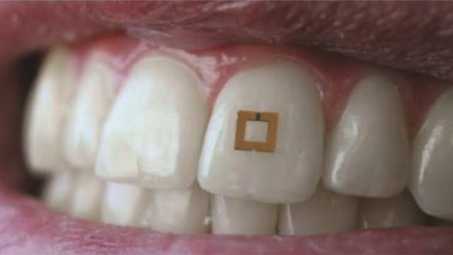 tooth sensor teeth New Teeth Sensor Set To Replace Fitbit?